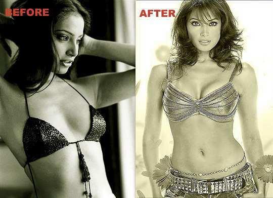 Bipasha-basu-before-after-surgery-pics