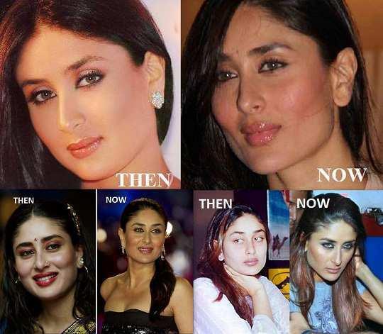 Kareena-kapoor-before-after-surgery-pics