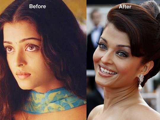 aishwarya-rai-before-after-surgery-pics