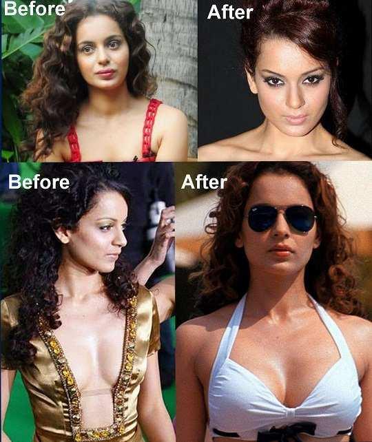 kangana-ranaut-before-after-surgery