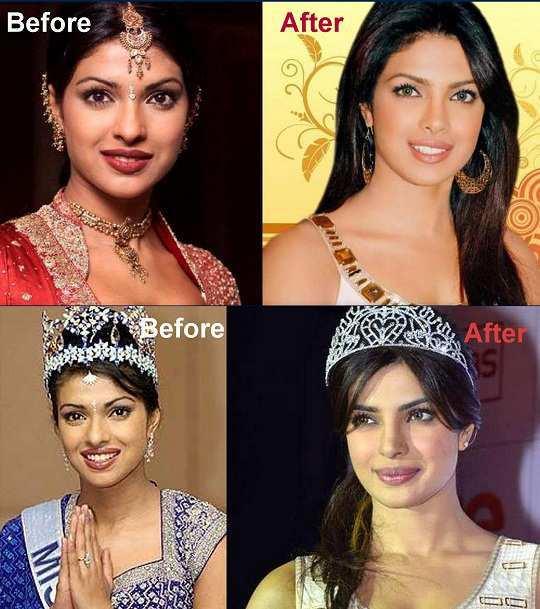 priyanka-chopra-before-after-surgery-pics