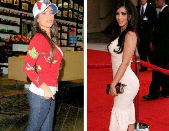 kim-kardashians-butt-Injections