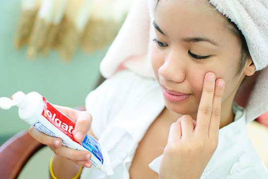 dry-out-pimples-home-remedies-toothpaste