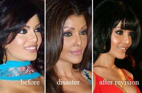 plastic-surgery-10