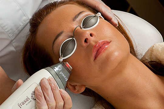 uneven-skin-tone-home-remedies-laser