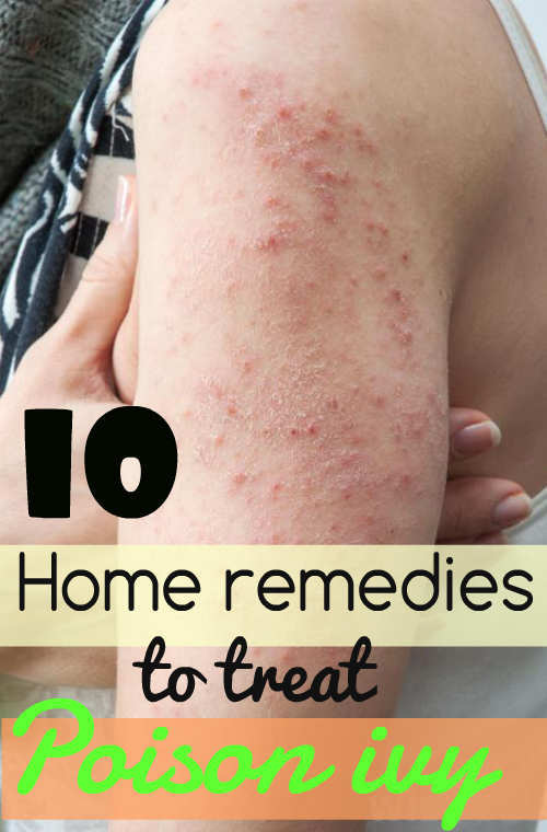 10 Helpful Home Remedies To Treat Poison Ivy  U2013 Wetellyouhow