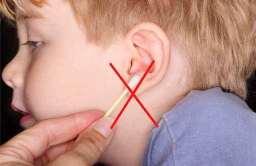 Ear-wax-cleaner